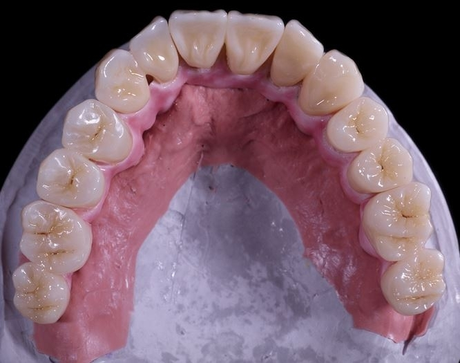 chang dental Chang dental clinic case solution,chang dental clinic case analysis, chang dental clinic case study solution, students must evaluate the possibility of purchasing a business, as well as to assess the likelihood that a potential investor, as a sole proprietor, will.
